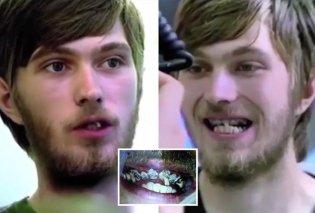 Βίντεο που κόβει την ανάσα: Να πώς θα γίνουν τα δόντια σας αν δεν τα βουρτσίζετε για 20 χρόνια (Βίντεο) - Κυρίως Φωτογραφία - Gallery - Video