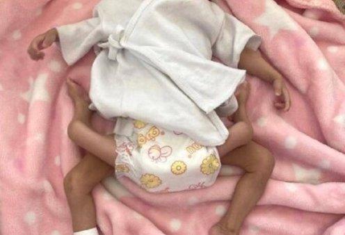 Κοριτσάκι γεννήθηκε με 4 πόδια! Διαχώρισαν βρέφος από το δίδυμο αδερφάκι του που ποτέ δεν απέκτησε κεφάλι (φωτό – βίντεο) - Κυρίως Φωτογραφία - Gallery - Video