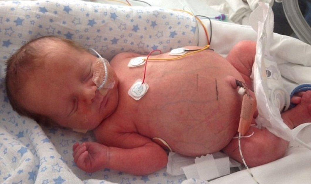 Το απίστευτο story της ημέρας - Μωρό στην Αγγλία γεννήθηκε με στομάχι στο μέγεθος μιας μπάλας ποδοσφαίρου! - Κυρίως Φωτογραφία - Gallery - Video