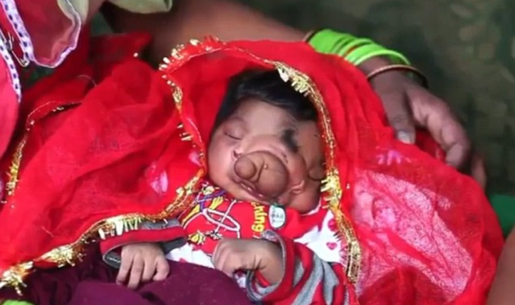 Απίστευτο: Κοσμοσυρροή στην Ινδία για το μωρό που γεννήθηκε με προβοσκίδα - λατρεύεται σαν θεός - Κυρίως Φωτογραφία - Gallery - Video
