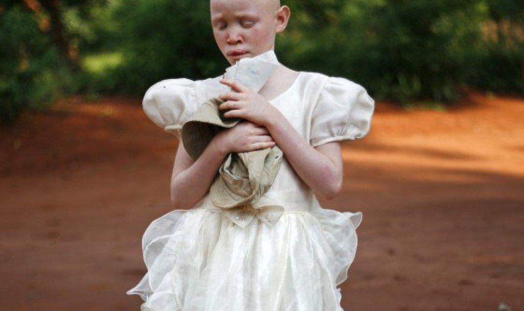 Μαλάουι: Καθηγητής σχεδίαζε να πουλήσει μαθήτρια με λευκοπάθεια για 9.700 ευρώ - Κυρίως Φωτογραφία - Gallery - Video