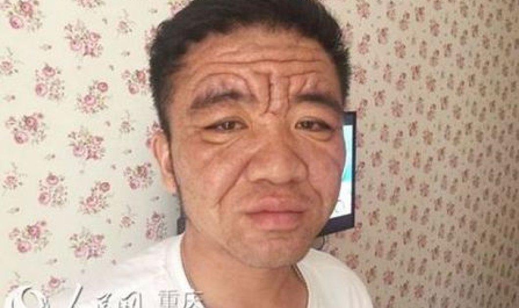 Φοβερή ασθένεια έχει κάνει 30άρη να δείχνει 80χρονος με ρυτίδες και στυλ γέρου - Κυρίως Φωτογραφία - Gallery - Video