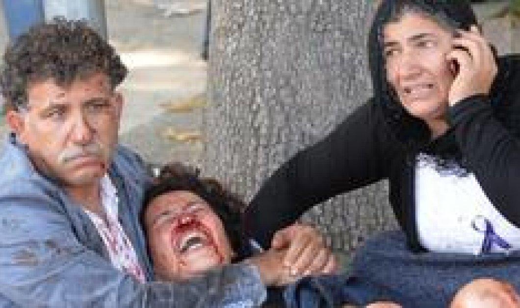 Παγκόσμιο σοκ για το μακελειό στην Άγκυρα - φωτογραφίες που συγκλονίζουν  - Κυρίως Φωτογραφία - Gallery - Video