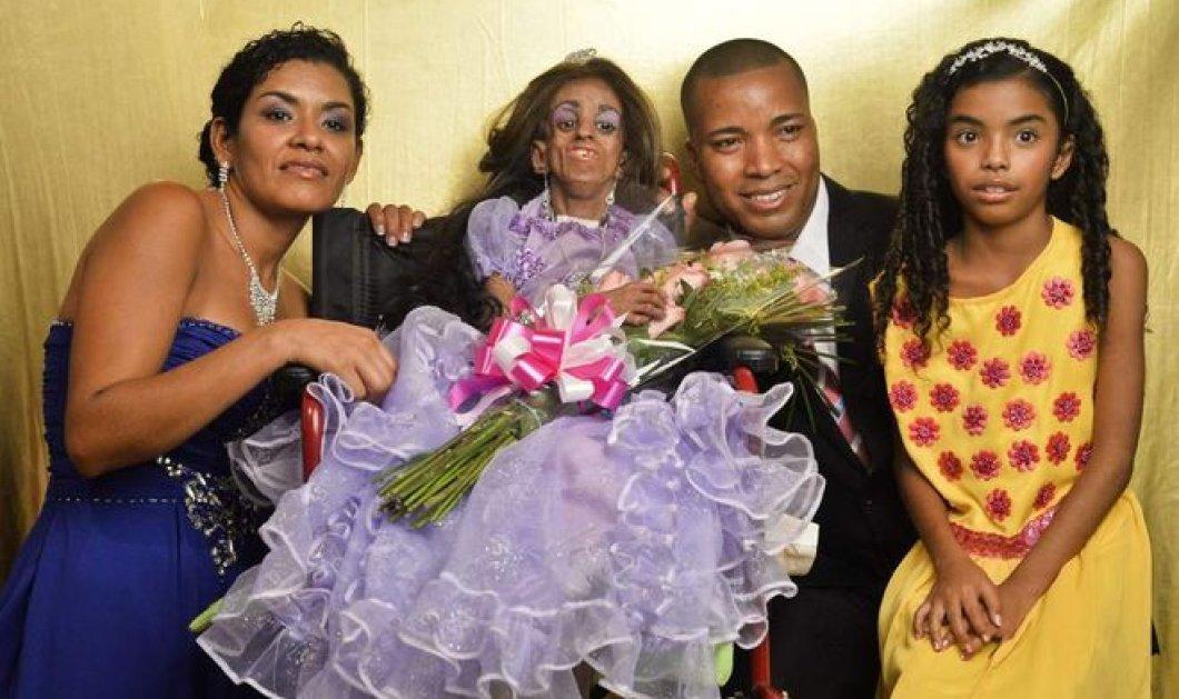 Στο αναπηρικό καροτσάκι γιόρτασε τα γενέθλια 15χρονη πρόωρα γερασμένη κοπέλα - Την έκαναν πριγκίπισσα για μια μέρα - Κυρίως Φωτογραφία - Gallery - Video