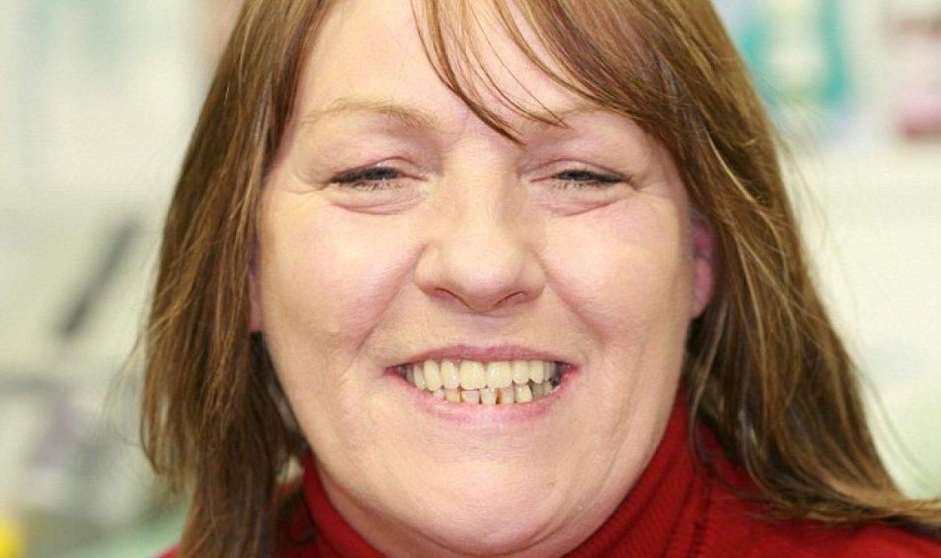 48χρονη ''επισκεύαζε'' για 10 χρόνια μόνη της τα δόντια με κόλλα - Τα έχασε όλα & έτρεξε στον οδοντίατρο - Κυρίως Φωτογραφία - Gallery - Video