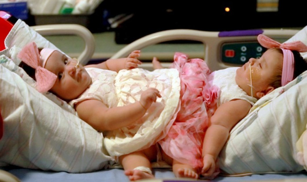 Διαχωρίστηκαν σιαμαία κοριτσάκια που γεννήθηκαν από τρίδυμη κύηση: 15 ώρες ο τοκετός -  Φώτο - Κυρίως Φωτογραφία - Gallery - Video