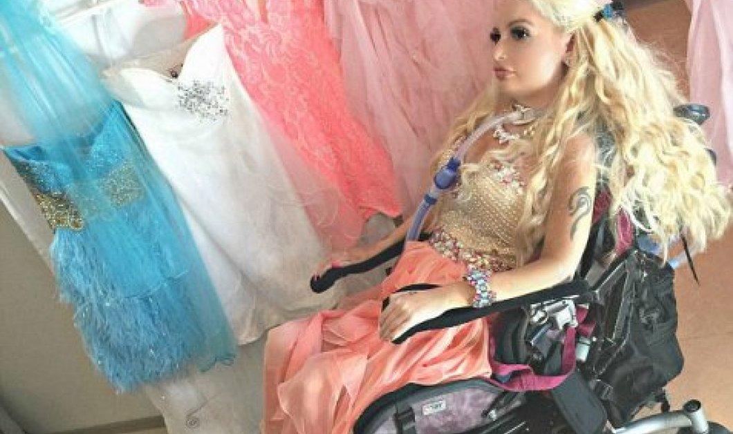 H συγκινητική ιστορία της 26χρονης τετραπληγικής Τζάσμιν: Ξόδεψε πάνω από 12.000 ευρώ για να γίνει σαν τη Barbie  - Κυρίως Φωτογραφία - Gallery - Video