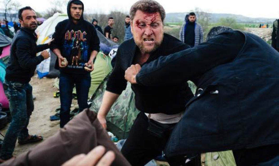 Καταγγελία Γιατρών Χωρίς Σύνορα: Φροντίσαμε 300 άτομα - 200 από έκθεση σε δακρυγόνα,20 από τραύματα πλαστικών σφαιρών στην Ειδομένη - Κυρίως Φωτογραφία - Gallery - Video