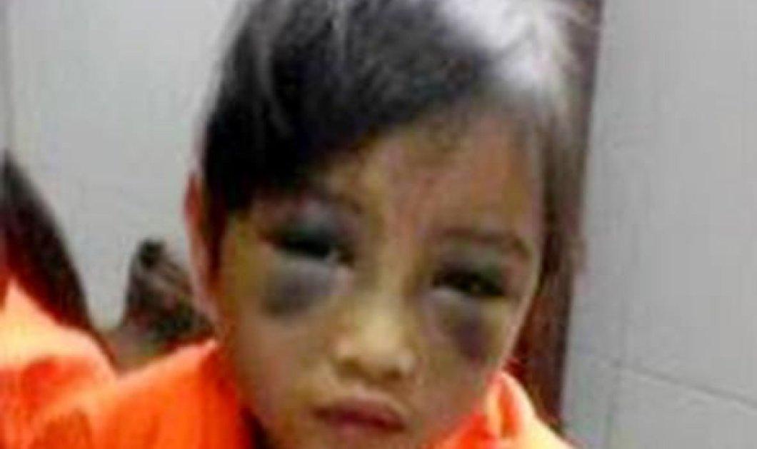 Φρίκη & αποτροπιασμός: Δάσκαλος χτύπησε με χάρακα 6χρονη στο πρόσωπο για ένα λάθος στην ορθογραφία! - Κυρίως Φωτογραφία - Gallery - Video