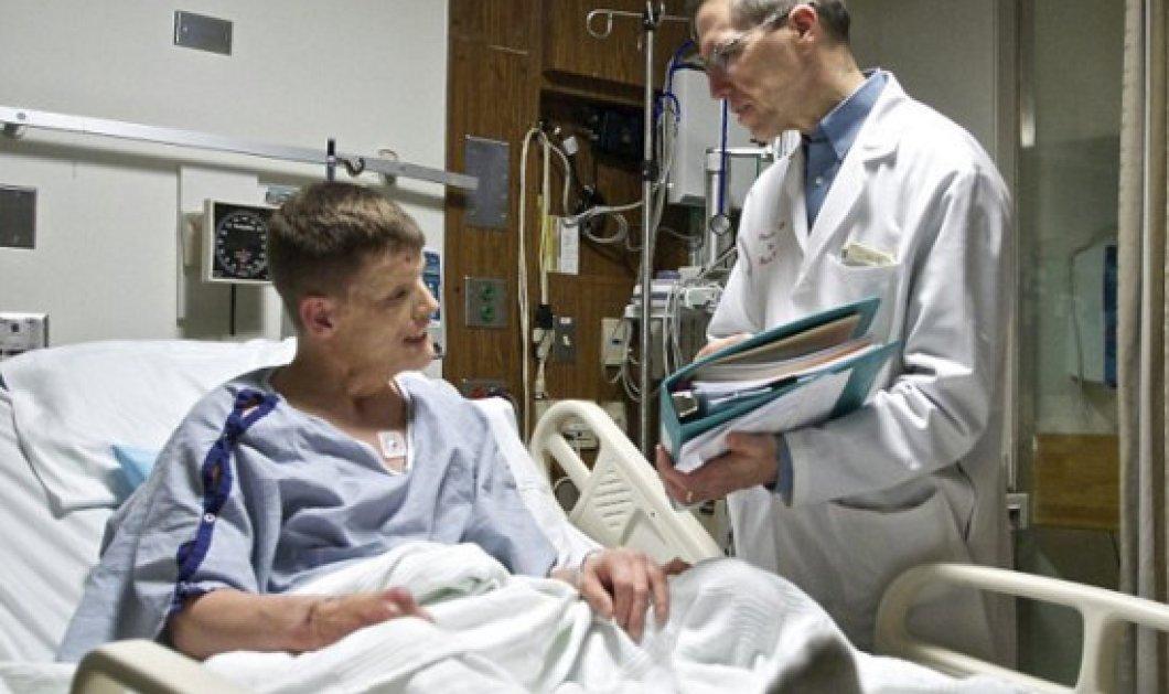 Στρατιώτης παραμορφώθηκε τόσο που τον φοβόταν ο γιος του: 30 γιατροί του άλλαξαν το πρόσωπό - Να πως είναι   - Κυρίως Φωτογραφία - Gallery - Video