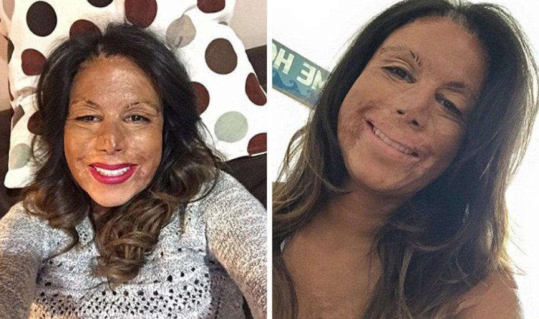 Η τραγική ιστορία της 32χρονης Jeairy: Κάηκε από κερί την ώρα που είχε απλώσει σε πρόσωπο & μαλλιά λάδι -  Τα εγκαύματα την άλλαξαν για πάντα - Κυρίως Φωτογραφία - Gallery - Video
