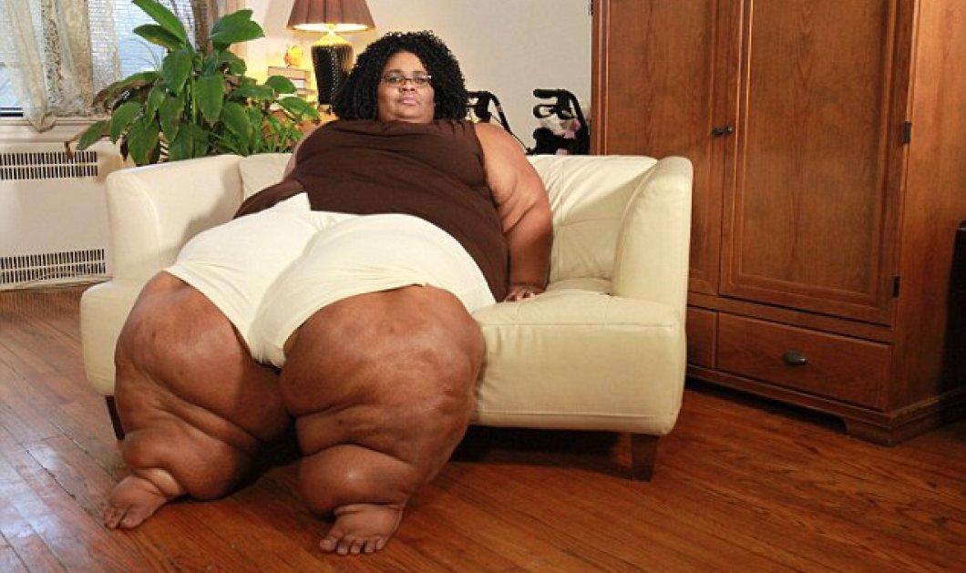 H 36χρονη Κάτια πάσχει από σπάνια ασθένεια & έχει τα πιο πλατιά πόδια στον κόσμο - Πάνω από 1,2 μέτρα - Κυρίως Φωτογραφία - Gallery - Video