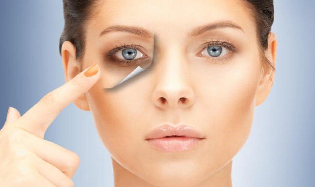 Γιατί εμφανίζουμε μαύρους κύκλους στα μάτια; Οι δερματολόγοι εξηγούν  - Κυρίως Φωτογραφία - Gallery - Video