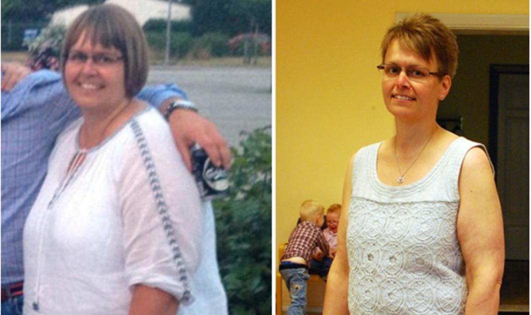 Story of the day: H 43χρονη Carola έχασε 60 κιλά αδειάζοντας με «βρύση» το στομάχι της μετά από κάθε γεύμα - Κυρίως Φωτογραφία - Gallery - Video
