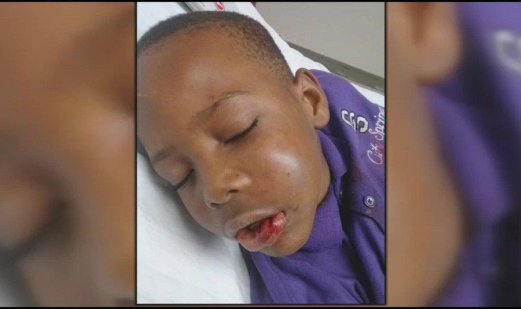 Δάσκαλος τα πήρε στο κρανίο & έσπασε τα δόντια 7χρονου μαθητή - Καταδικάστηκε σε 85ετή φυλάκιση  - Κυρίως Φωτογραφία - Gallery - Video