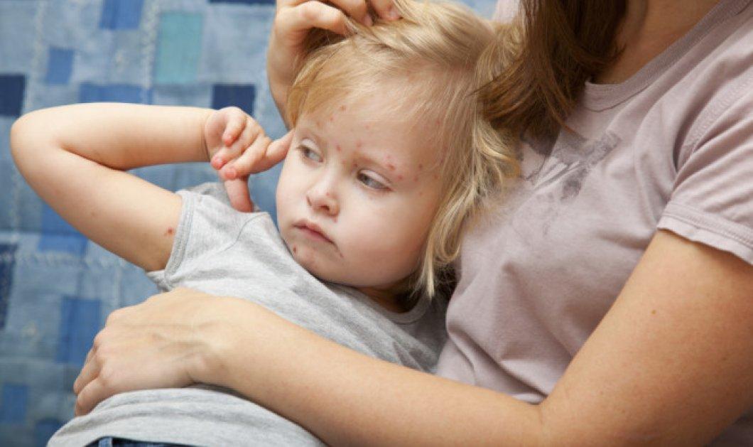 Σε επιδημική έξαρση ιλαράς η Ελλάδα εκτιμούν οι επιστήμονες - Τι θα πρέπει να γνωρίζουν οι γονείς - Κυρίως Φωτογραφία - Gallery - Video