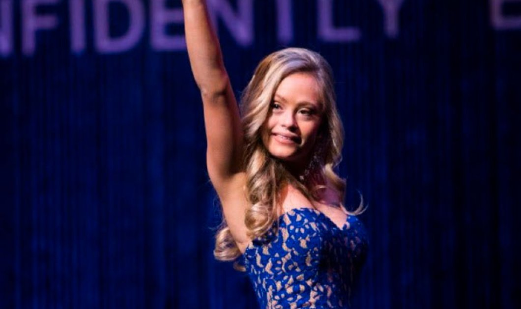 Mikayla Holmgren: H πρώτη γυναίκα με σύνδρομο down που βρήκε το θάρρος να συμμετέχει στον διαγωνισμό ομορφιάς για την Miss Minnesota USA και βραβεύτηκε (ΦΩΤΟ-ΒΙΝΤΕΟ)  - Κυρίως Φωτογραφία - Gallery - Video