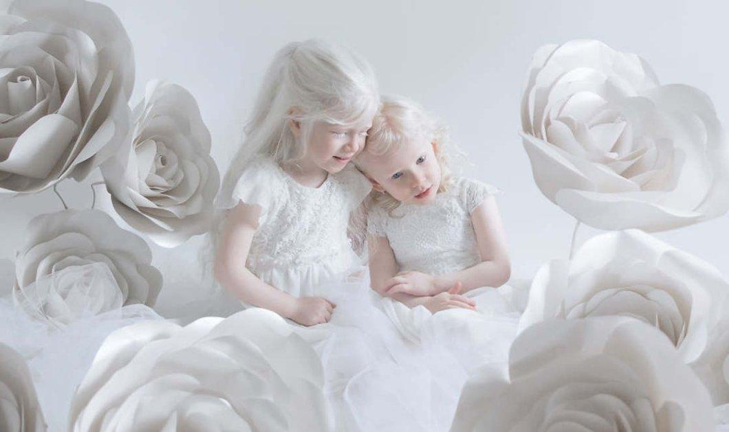 Ομορφιά από πορσελάνη: Απίστευτες φωτογραφίες ανθρώπων αλμπίνο που μαγεύουν!       - Κυρίως Φωτογραφία - Gallery - Video