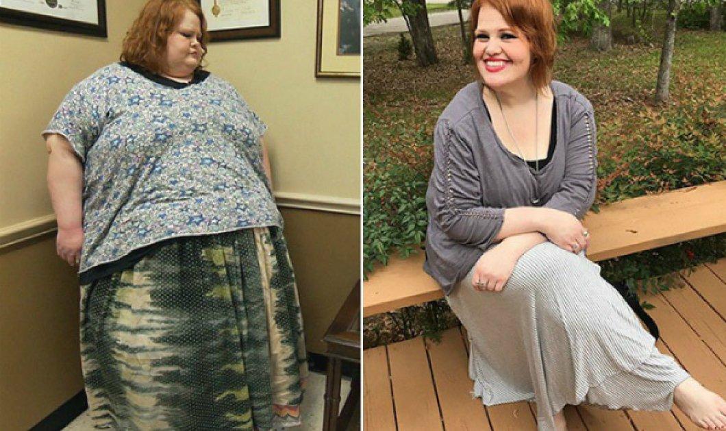Ασύλληπτο: 24 άνθρωποι που ζύγιζαν 300 κιλά & έφτασαν ξανά σε κανονικό βάρος (ΦΩΤΟ) - Κυρίως Φωτογραφία - Gallery - Video