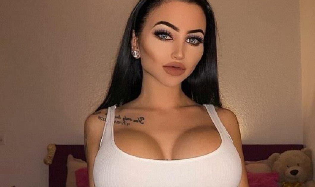 24χρονη ασχημούτσικη Ελβετίδα πλήρωσε 40.000 ευρώ σε πλαστικές για να γίνει όμορφη - Κατέληξε σε αυτό που βλέπετε (φωτό)  - Κυρίως Φωτογραφία - Gallery - Video