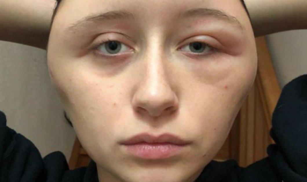 Πως η 19χρονη Γαλλιδούλα παραμορφώθηκε από βαφή μαλλιών – Η αλλεργική αντίδραση σε ένα συνηθισμένο προϊόν - Κυρίως Φωτογραφία - Gallery - Video