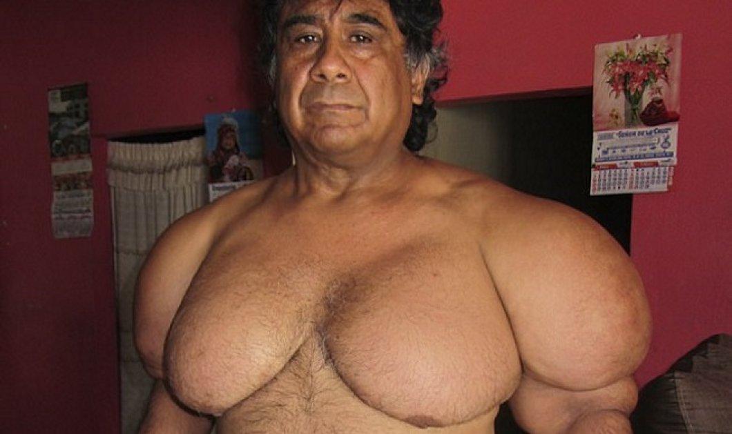 Να πώς έγινε το σώμα δύτη: Φούσκωσε όταν διακόπηκε η παροχή αέρα - Απέκτησε γυναικείο στήθος και μύες μασίστα (Φωτό) - Κυρίως Φωτογραφία - Gallery - Video