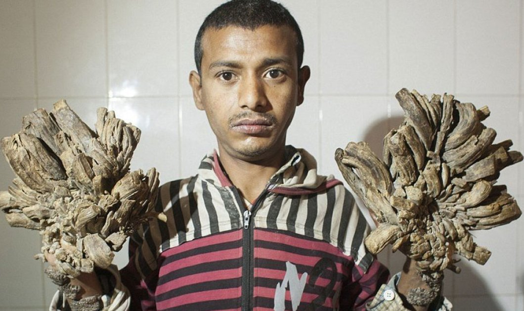 Για την 26η εγχείρηση στο νοσοκομείο ο 28χρονος άνθρωπος  - δέντρο  από το Μπαγκλαντές – Χειροτέρευσε η κατάστασή του - Κυρίως Φωτογραφία - Gallery - Video