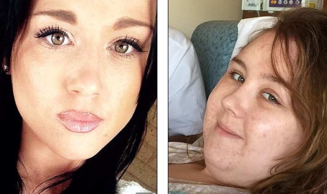 Ήθελε να γίνει μοντέλο η όμορφη 24χρονη, ο καρκίνος την παραμόρφωσε και ο αρραβωνιαστικός έγινε Λούης (Φωτό) - Κυρίως Φωτογραφία - Gallery - Video