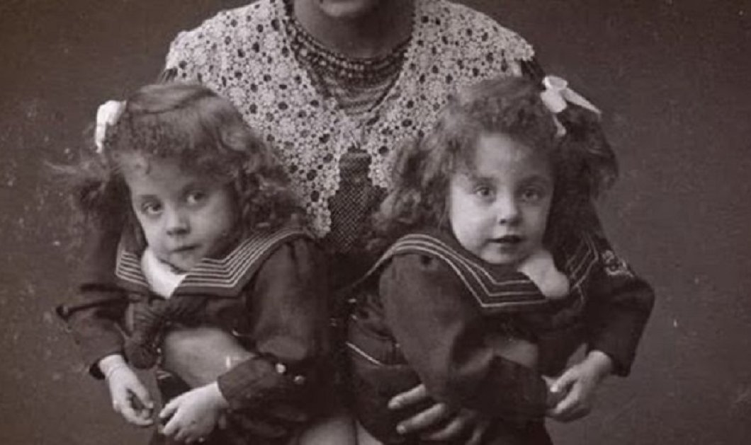 40 vintage φωτογραφίες από τα δυστυχισμένα δίδυμα Daisy & Violet Hilton - Κυρίως Φωτογραφία - Gallery - Video