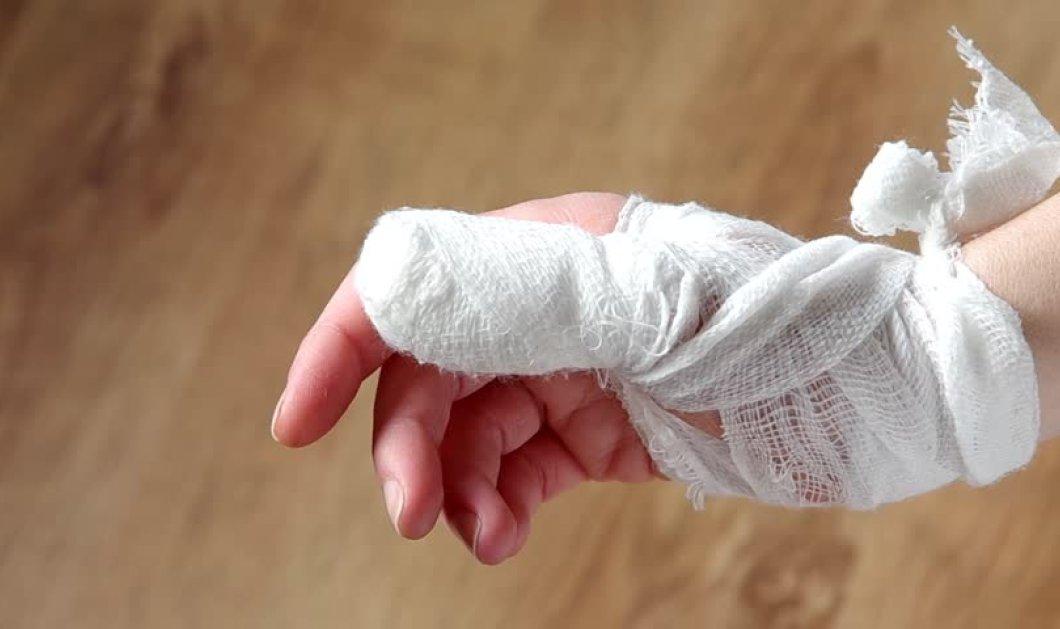 Δεν το χωρά ανθρώπινος νους: Γυναίκα έκοψε το χέρι της για να λάβει ιατρική αποζημίωση ύψους 400.000 ευρώ - Κυρίως Φωτογραφία - Gallery - Video