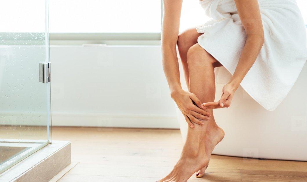Κιρσοί και Ευρυαγγείες: 5 χρήσιμες συμβουλές για όμορφα και υγιή πόδια - Κυρίως Φωτογραφία - Gallery - Video