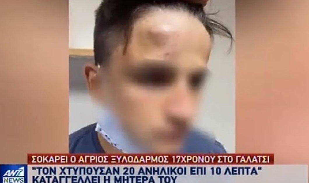 Σοκάρει ο άγριος ξυλοδαρμός 17χρονου στο Γαλάτσι - Καταγγέλει ότι τον χτύπησαν 20 ανήλικοι (βίντεο) - Κυρίως Φωτογραφία - Gallery - Video