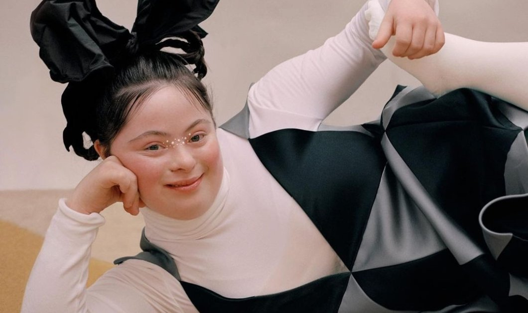 "Ellie Goldstein: Το πρώτο μοντέλο με σύνδρομο Down έγινε 18- Εξώφυλλο στο περιοδικό ""Allure""- Οι πόζες & το μακιγιάζ (φωτό) - Κυρίως Φωτογραφία - Gallery - Video"