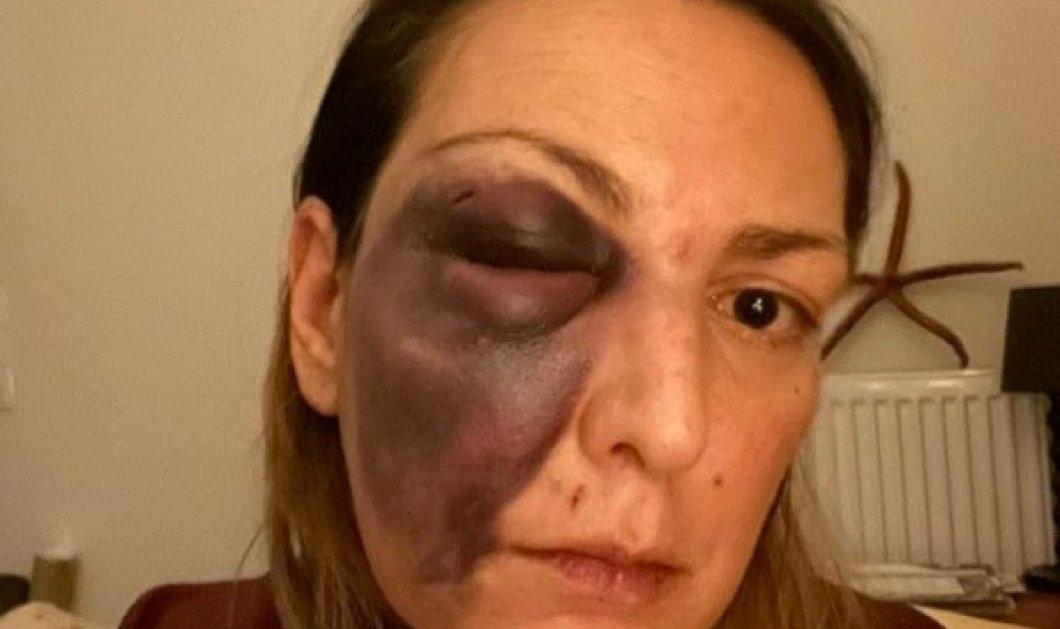 Σταυρούλα Τζαφέρη: Οι νέες σοκαριστικές φωτογραφίες & η διάψευση - «έπεσα, αυτή είναι η επίσημη εκδοχή, αλλά ξέρουν τι μου έχει συμβεί»  - Κυρίως Φωτογραφία - Gallery - Video