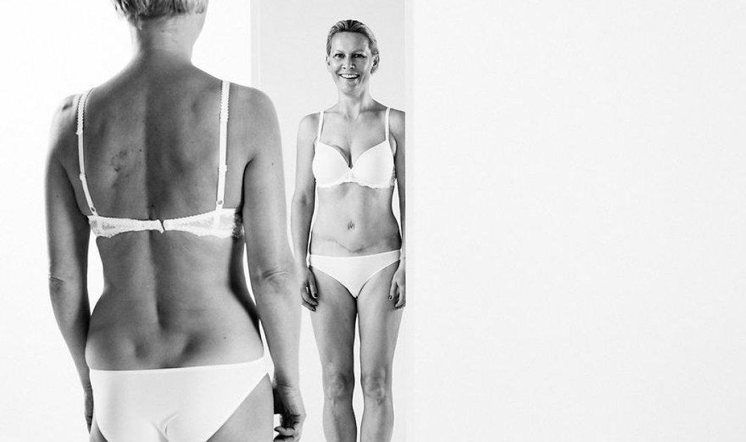 6 τολμηρές γυναίκες μας δείχνουν με καμάρι τα σώματα τους κάθε άλλο παρά τέλεια! Love them!  - Κυρίως Φωτογραφία - Gallery - Video