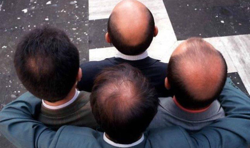 Η φαλάκρα, ειδικά στην κορυφή του κεφαλιού, αυξάνει την πιθανότητα καρδιολογικών προβλημάτων στους άνδρες; - Κυρίως Φωτογραφία - Gallery - Video