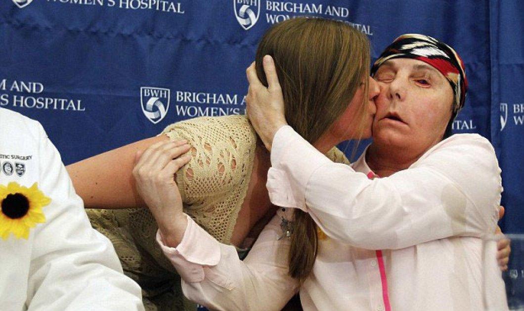 Το νέο της πρόσωπο που είχε κάψει ο σύζυγος της αποκάλυψε ύστερα από 55 εγχειρήσεις η Κάρμεν Βλάντιν Τάρλετον - Συγκλονιστικές φωτό - βίντεο! - Κυρίως Φωτογραφία - Gallery - Video