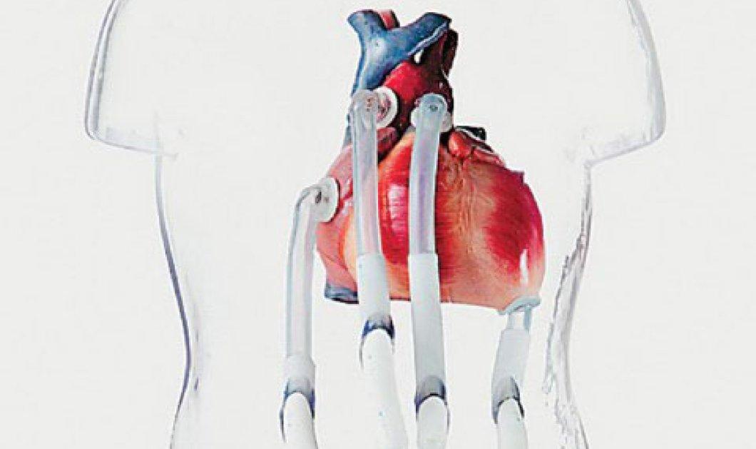 Τεχνητή καρδιά σε Γιαπωνεζάκι 14 μηνών !!!  - Κυρίως Φωτογραφία - Gallery - Video