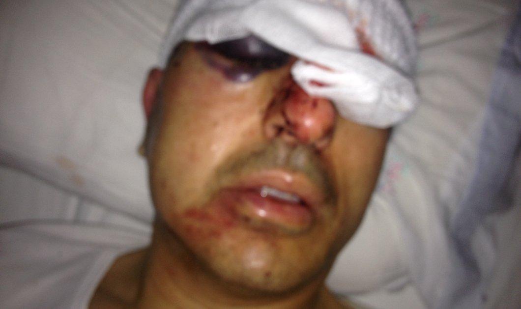 Σοκάρουν οι φωτογραφίες από τη δολοφονική επίθεση κατά του αντιδημάρχου Ηρακλείου - Έπεσε θύμα εκβιασμού από αγνώστους - Κυρίως Φωτογραφία - Gallery - Video