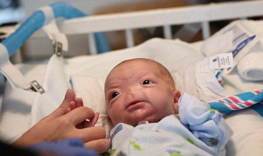 Η συγκινητική ιστορία του μικρούλη Timothy Eli Thompson - Γεννήθηκε χωρίς μύτη & το facebook ''κατέβασε'' τις φωτογραφίες που δημοσίευσε η μαμά του! - Κυρίως Φωτογραφία - Gallery - Video