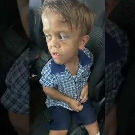 Ραγίζει καρδιές ο 9χρονος νάνος που κλαίγοντας  λέει: ''Θέλω να πεθάνω'' (βίντεο) - Κυρίως Φωτογραφία - Gallery - Video