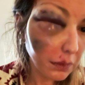 Στεφανία Τζαφέρη: Θύμα κακοποίησης γνωστή food blogger από την Κρήτη - σοκάρει η εικόνα της από τον ξυλοδαρμό - Κυρίως Φωτογραφία - Gallery - Video